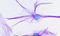 10 quan niệm sai lầm về bộ não con người
